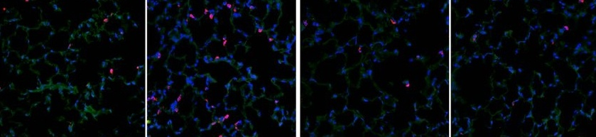 Our Comprehensive Guide to Performing Double Immunofluorescence